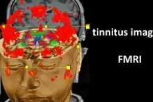 The place of the FMRI examination in the tinnitus