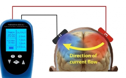 High Definition Transcranial Direct Current Stimulation (HDtDCS)